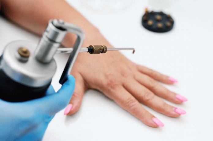 Come eliminare le verruche con la criochirurgia