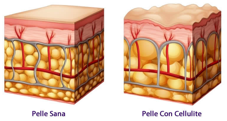 Come si forma la cellulite pelle con cellulite - pelle sena