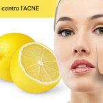 Come eliminare i brufoli – limone