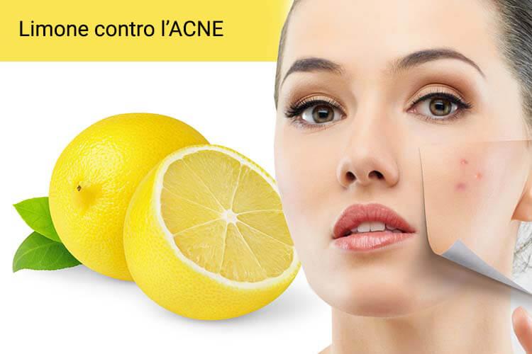 Come eliminare i brufoli - limone